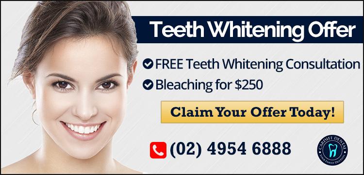 Cardiff Dental Teeth Whitening Offer Banner | Dentist Cardiff