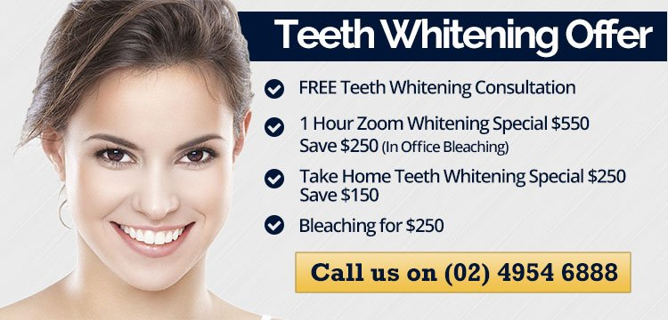 Cardiff Dental Teeth Whitening Specials Banner