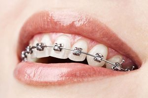 Conventional Braces | Dentist Cardiff