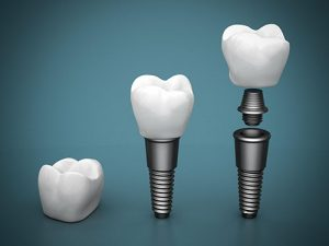 Dental Implants | Dentist Cardiff