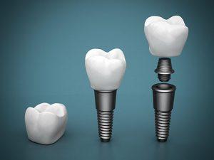 Dental Implants | Dentist Cardiff