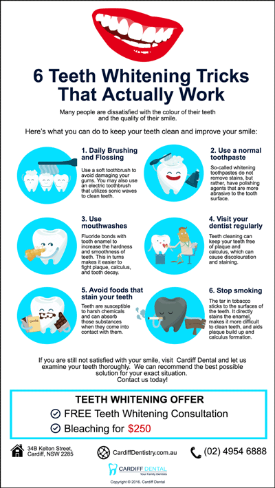 dentist-cardiff-tips-6-teeth-whitening-tricks-that-actually-work