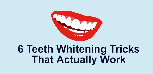 6 Teeth Whitening Tricks That Actually Work