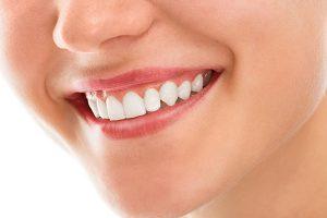 Gum Problems   Dentist Cardiff