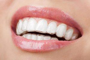 Invisalign | Dentist Cardiff