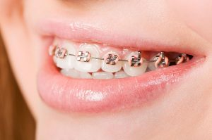 Orthodontics | Dentist Cardiff