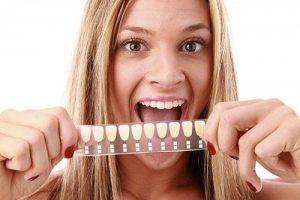 Porcelain Veneers | Dentist Cardiff