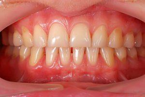 Receding Gums | Dentist Cardiff