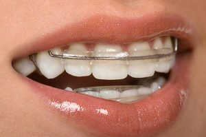 Straightening Teeth Without the Need for Braces   Dentist Cardiff