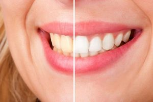 Teeth Whitening | Dentist Cardiff