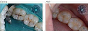 White Fillings Case 1 | Dentist Cardiff