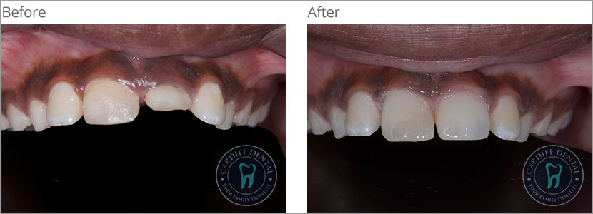 Ceramic or Porcelain Crown Case 2 | Dentist Cardiff