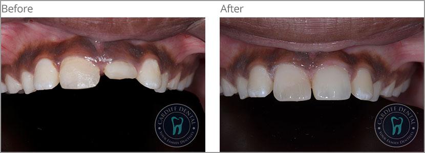 Ceramic or Porcelain Crown Case 2 | Dentist Cardiff