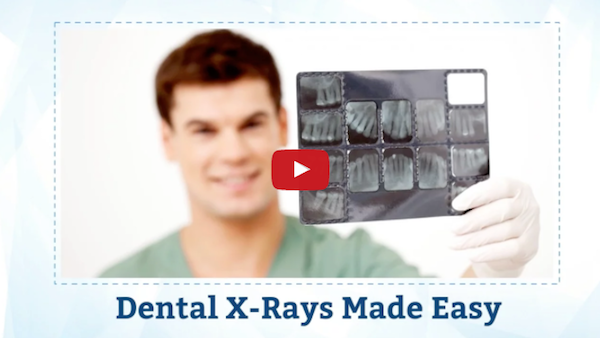 Dental X-rays Made Easy: Reliable, Fast and Efficient