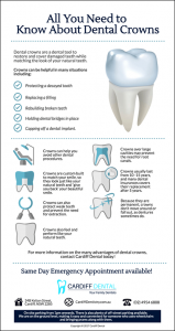 Dental-Crowns-What-You-Should-Know