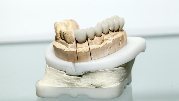 Are Dental Crowns Permanent?