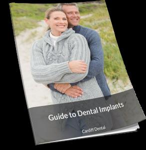 Gudie to Dental Implants by CD