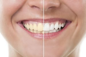 How To Whiten Yellow Teeth in One Day