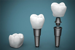 Cardiff Dental |  Dental Implants | Dentist Cardiff