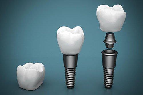 Cardiff Dental |  Dental Implants | Dentist Cardiff