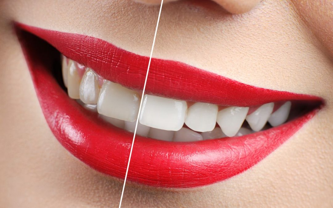 How to Whiten Teeth, at Home and in the Dental Office