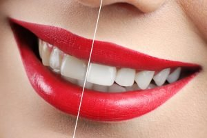 How to Whiten Teeth at Home and in the Dental Office Cardiff