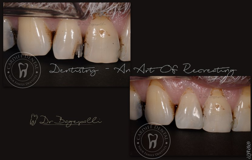 white fillings case 3 cardiff