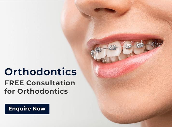 orthodontics promo banner cardiff