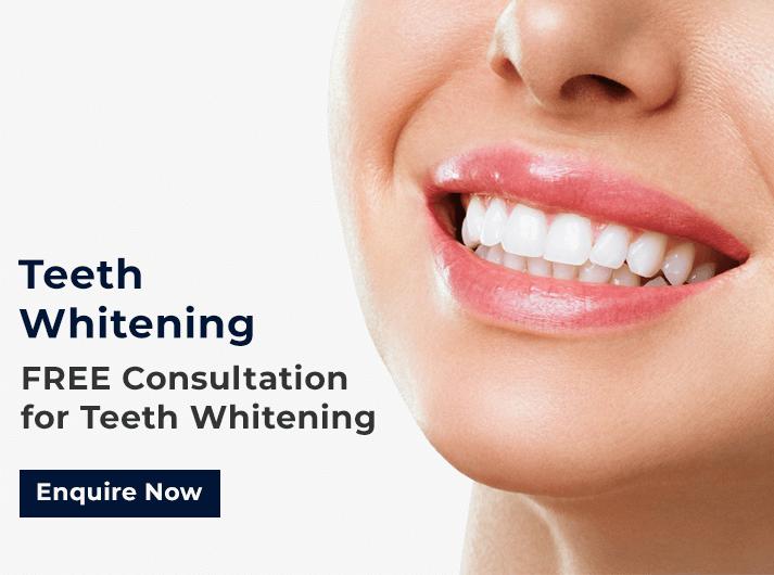 teeth whitening promo banner cardiff